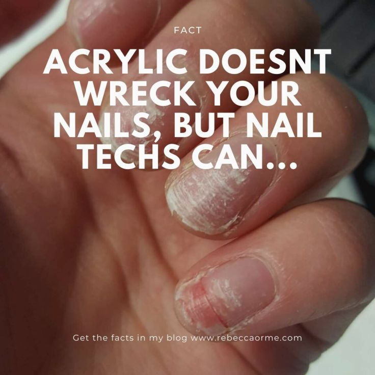 Acrylic Doesnt Wreck your nails, but nail techs can...